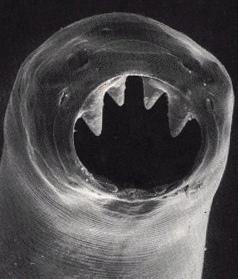 7lovejohnson-hookworm