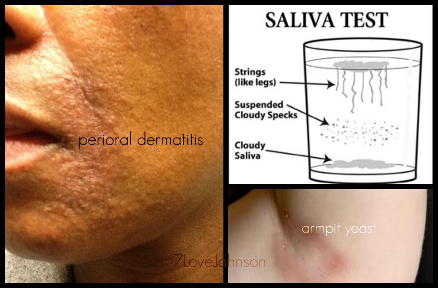 7lovejohnson-candida-yeast-fungus-perioral-dermatitis-